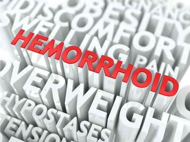 Cara Pengobatan Hemoroid