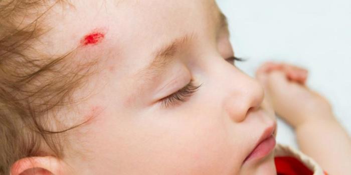 Obat Cedera Kepala Akibat Terbentur